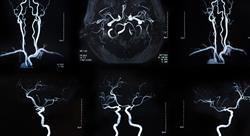 curso patologia vascular hemorragia subaracnoidea patologia aneurismatica intracraneal Tech Universidad