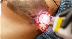 master medicina estética y tratamiento del acné
