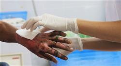 curso atención hospitalaria inicial y fluidoterapia en grandes quemados