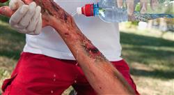 diplomado atención inicial en grandes quemados: vía aérea y hemodinámica