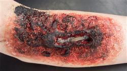 posgrado tratamiento paciente critico patologia piel Tech Universidad
