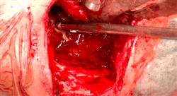 maestria actualización en cirugía ortopédica y traumatología