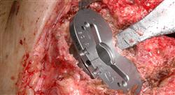 posgrado actualización en cirugía ortopédica y traumatología