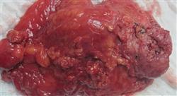 estudiar avances en el diagnóstico tratamiento y seguimiento del carcinoma urotelial