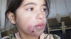 curso actualización en patología infecciosa en dermatología pediátrica