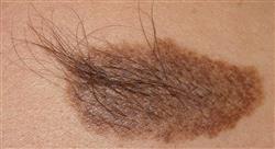 curso actualización en patología pigmentaria y tumoral dermatológica