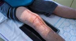 estudiar cirugía ortopédica y traumatología de rodilla tobillo y pie