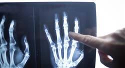 experto universitario cirugía ortopédica y traumatología de miembros superiores