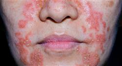 experto universitario fitoterapia dermatológica y otras aplicaciones de la fitoterapia