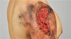 diplomado urgencias traumatológicas urgencias por agentes físicos e intoxicaciones en el medio extrahospitalario para médicos