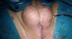 formacion avances en el diagnóstico tratamiento y seguimiento del cáncer de pene