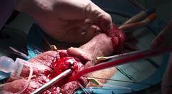 posgrado avances en el diagnóstico tratamiento y seguimiento del cáncer de pene