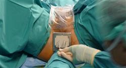 diplomado avances en el diagnóstico tratamiento y seguimiento del carcinoma vesical no músculo invasivo