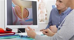 formacion actualización en principios oncológicos secuelas funcionales y tratamientos de soporte del paciente con patología tumoral urológica