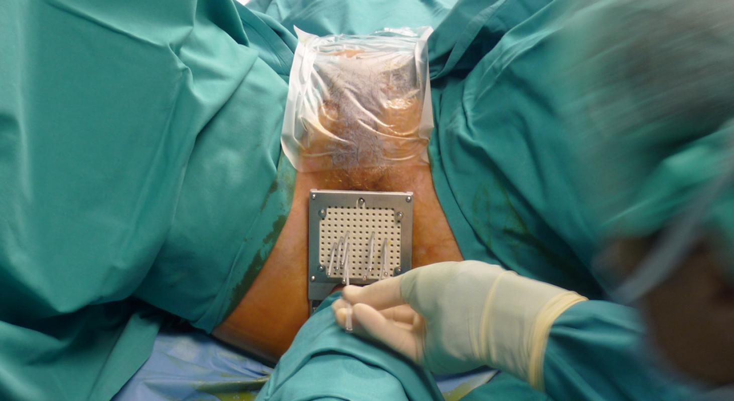 Sonda cancer de prostata
