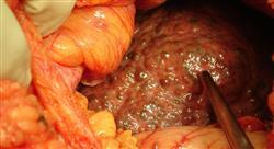 oncologia digestiva cuatro