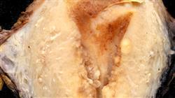 formacion evaluacion clinica paciente endometriosis