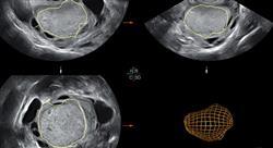 curso diagnostico endometriosis