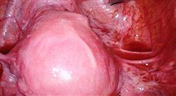 curso online experto evaluacion clinica diagnostico endometriosis