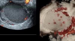 posgrado experto evaluacion clinica diagnostico endometriosis
