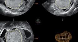 curso online experto tratamientos fertilidad endometriosis