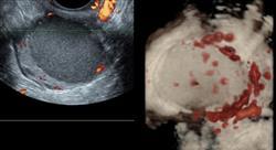 posgrado experto tratamientos fertilidad endometriosis