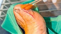 master semipresencial cirugia ortopedica traumatologia dos