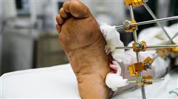 master semipresencial cirugia ortopedica traumatologia uno