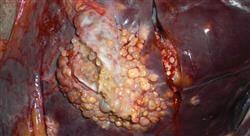 formacion cirugía hepática