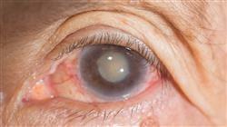 posgrado grand master oftalmologia