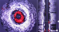 experto universitario ecografía clínica cerebral y vascular para emergencias y cuidados críticos