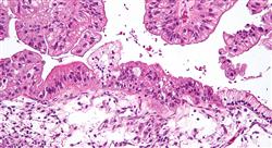 maestria online ginecología oncológica