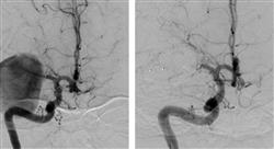 especializacion online radiología vascular intervencionista