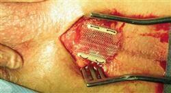 especializacion cirugía del tracto urinario inferior