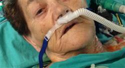 experto universitario anestesiología cardiotorácica