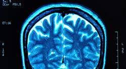 diplomado neurorradiología diagnóstica