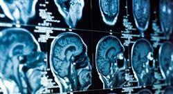 formacion neurorradiología diagnóstica