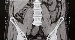 curso diagnóstico por imagen del abdomen