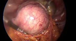 posgrado epidemiología y diagnóstico del cáncer de endometrio