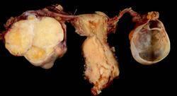 diplomado epidemiología y diagnóstico del cáncer de cuello uterino