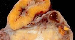 diplomado tratamiento y manejo del cáncer de ovario