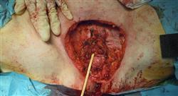 curso tratamiento y manejo del cáncer de vulva