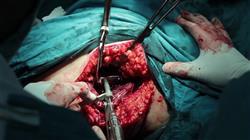 curso tumores ginecológicos infrecuentes
