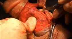 posgrado patología quirúrgica del pene