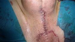 diplomado patologia quirurgica escroto