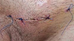 formacion patologia quirurgica escroto
