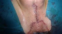 posgrado tratamiento quirúrgico de la incontinencia urinaria y suelo pelviano