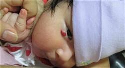 curso oftalmología pediátrica
