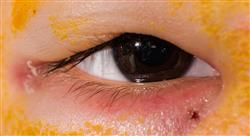 diplomado oftalmología pediátrica