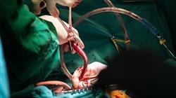 diplomado anestesia cardiovascular